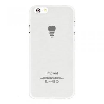 i Implant iPhoneケース(期間限定:50%OFF)