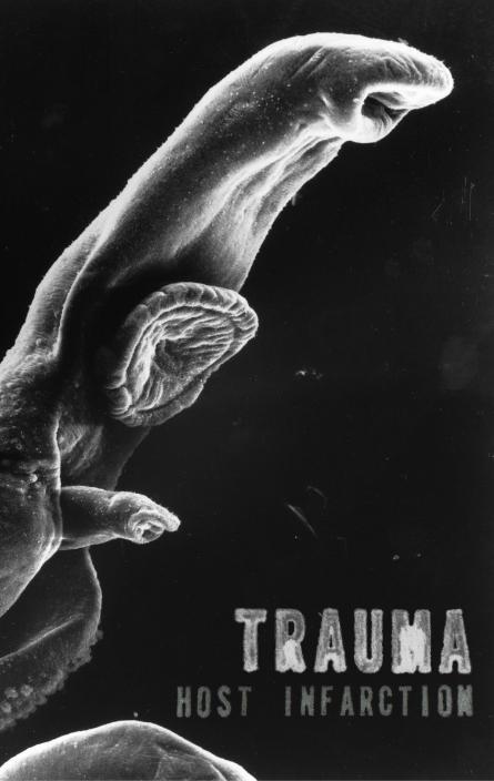 Trauma - Host Infarction  Tape - 画像1