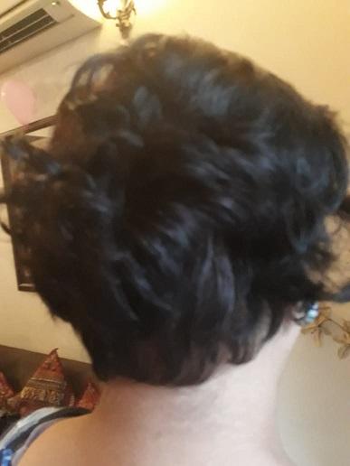 皮膚科の先生の髪が蘇った !