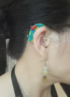 補聴器を着せ替え出来る唯一のアイテム 補聴器デコチップ