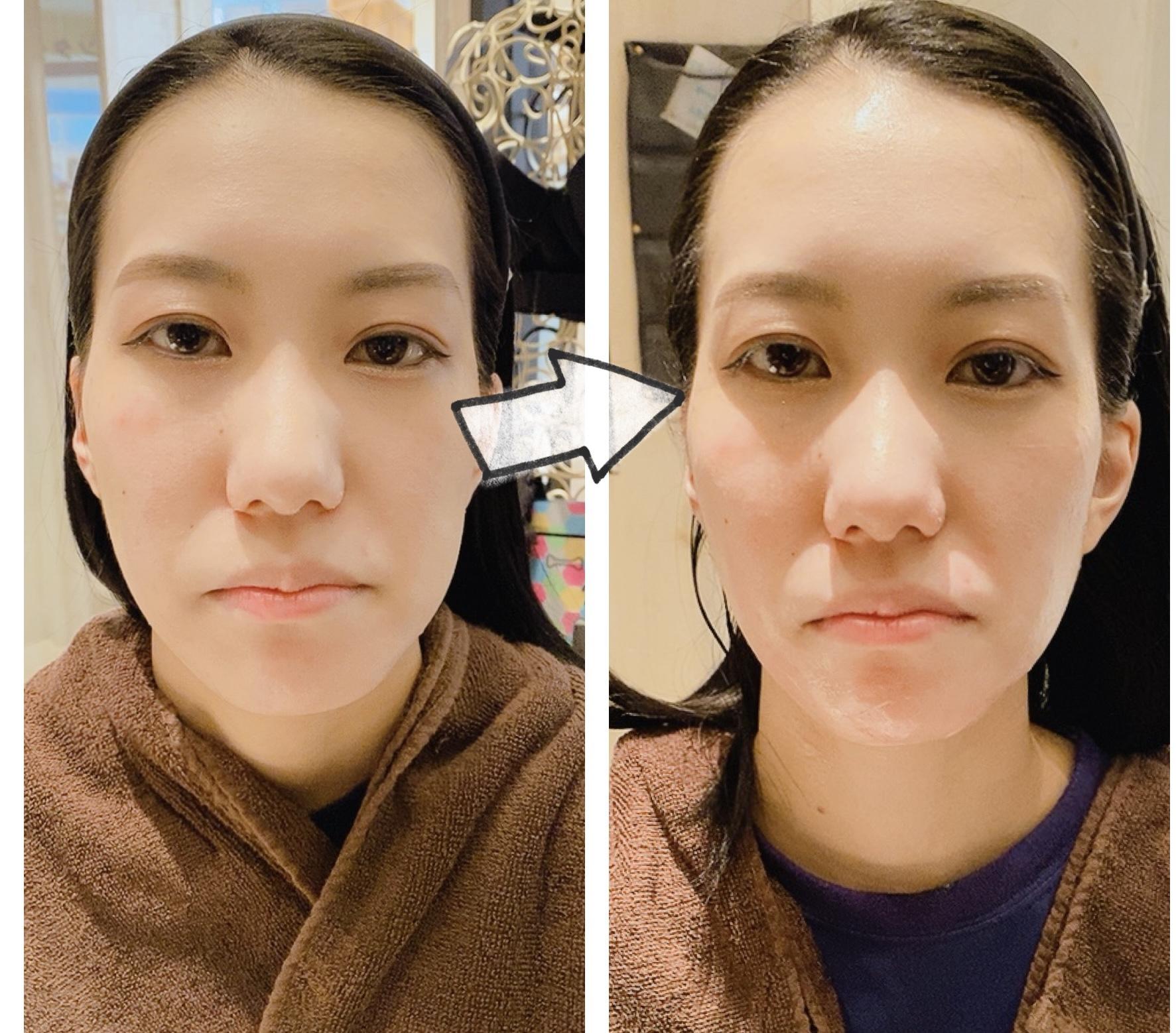 立体小顔が簡単!AI美顔器!リフトアップから肩こりまで全身に効く!お風呂でも使えるパイラナイト!
